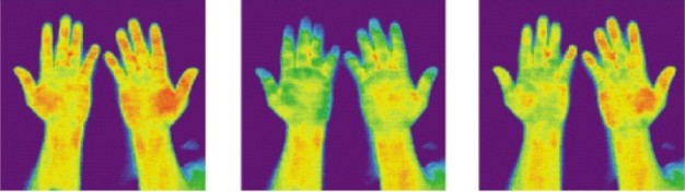 ThermographyFingers